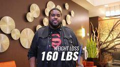 Patient Testimonial   China Hawk   Weight Loss Surgery   Atlanta, Georgia