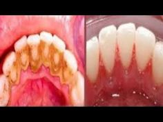 Video shows 3 best ways to remove teeth plaque or tartar at home without visiting a dentist for your dental cleaning. Remedies For Strong and White Teeth: ht. Health And Beauty Tips, Health Tips, Home Remedies, Natural Remedies, Teeth Whitening, Baking Soda, Beauty Hacks, Food And Drink, Health Fitness