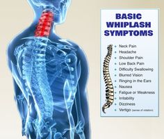 These are the basic symptoms of whiplash.
