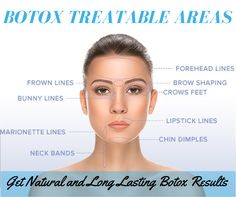 The average amount of botox units needed per facial area botox botox is a revolutionary approach to reversing the affects facial wrinkles this is mainly used solutioingenieria Gallery
