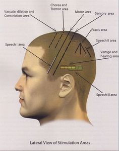 Scalp-Acupuncture-in-Toowoomba-for-Neurological-Disorders.jpg (344×435)
