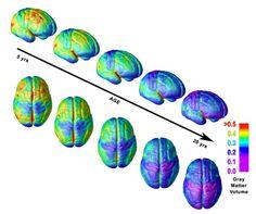 ¿A qué edad madura nuestro cerebro?   Sólo sé que no sé nada