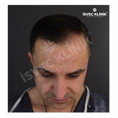 📲05306801546 👍 #زراعة_الشعر #hairtransplantation #hairtransplant #haartransplantation #greffe #greffedecheveux #hårtransplantation #haartransplantation #haartransplant #hairtransplantation #turkiye #beardtransplant #dubai #hairtransplant  #trapiantofue #istanbul  #trapiantocapelli #sacekimi...