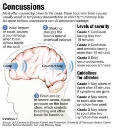 Scary statistics about concussions.  I know this isn't about dialysis but I suffered a Stage 3 concussion and wrote about it in my blog at www.DevonTexas.com