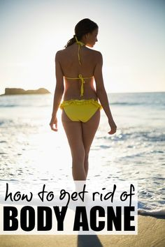 If you and/or your teenager suffer from body acne or back acne and feel too embarrassed to wear tank tops and open-backed dresses, make sure to bookmark this list of 6 tips to help you treat, prevent, and hide body acne!