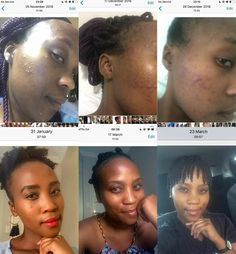 "Herbalife SKIN helps to eliminate pimples, blackheads and some forms of acne. Get yours today and get results like this today! Click the ""visit"" link below. Herbalife Distributor, Herbalife Weight Loss, Pimples, Link"