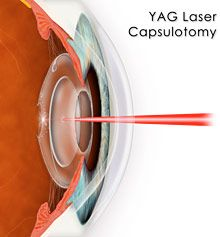 Cataract Surgery Complications - AllAboutVision.com