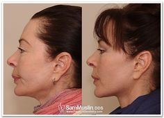 Treating an overbite and weak chin with non-invasive, no surgery, Face Lift Dentistry.