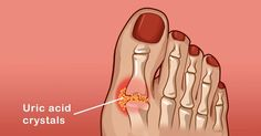 Causes of gout attack foot gout treatment,gout and foods to avoid gout attack,gout in toe gout symptoms foot pain. Natural Remedies For Gout, Gout Recipes, How To Cure Gout, Arthritis Foundation, Rheumatoid Arthritis Symptoms, Uric Acid, Body Cells, Foods To Avoid, Arthritis