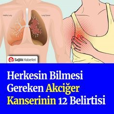 Akciğer kanserinin 12 belirtisi