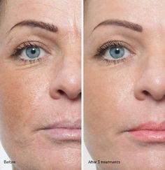 This is perfect example of Before and After photos of microdermabrasion results. Usually after 4-6 treatments.