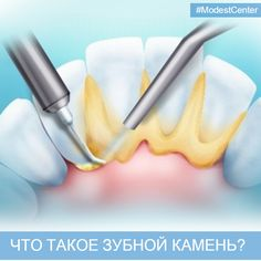 Многие пациенты стоматолога на профосмотре слышат от своего врача фразу «Вам надо удалять зубной камень».  Что такое зубной камень?  ЭТАПЫ ОБРАЗОВАНИЯ ЗУБНОГО КАМНЯ  1 этап: зубной налет  Если вы, проигнорировав вечернюю чистку зубов, ложитесь спать. частички того, что вы скушали за день, оседают в естественные углубления полости рта (межзубные промежутки и зубодесневую борозду).  Утром вы опять торопитесь, наспех почистив зубы, а оставшийся с вечера налет так и остается во рту в большем…