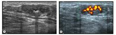 Superficial haemangioma of the dorsal aspect of the foot. The haemangioma contains a small phlebolith with posterior acoustic shadowing (A) (white arrow), which was also visible on radiographs. There is prominent vascularity on the power Doppler image (B). Ultrasound, Acoustic, Arrow, Flag, Country, Movie Posters, Rural Area, Film Poster, Science