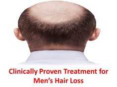 Clinically Proven Treatment for Men's Hair Loss Reverse Hair Loss, Hair Loss Causes, Hair Restoration, Hair Regrowth, Weight Loss, Men, Beauty, Losing Weight, Guys