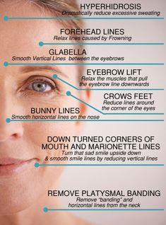 Risultati immagini per botox injection sites diagram Facial Fillers, Botox Fillers, Dermal Fillers, Fillers For Face, Cheek Fillers, Botox Brow Lift, Eyebrow Lift, Botox Injection Sites, Botox Injections