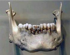 Milattan önce 2000 yılından kalma dünyanın en eski diş hekimliği çalışması