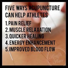 Acupuncture is a Natural Rapid Recovery System effective to treatment acute and chronic pain conditions. #acupuncture #health #fitness  healingartshealthcenter.com