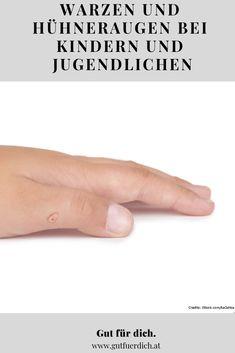 Sie gelten als unliebsames Mitbringsel aus dem Hallen- oder Freibad, finden sich vor allem während der Schulzeit an den Händen und Füßen von Kindern und Jugendlichen und resultieren oftmals in Schmerzen. Die Rede ist von Warzen und Hühneraugen. Bei jungen Menschen treten sie besonders häufig auf, weil ihr Immunsystem noch nicht so gut entwickelt und ihre Haut empfindlicher ist als bei Erwachsenen. Vaseline, Cold Cream, Fungal Infection, Go To Sleep, Healthy Skin, Immune System, Medicinal Plants, Petroleum Jelly