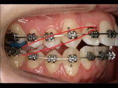 190 Ideas De Dientes Con Ortodoncia Ortodoncia Dientes Odontología