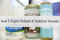 How I Fight Infant & Toddler Eczema {& Cradle Cap}