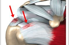 Rotator Cuff Tears ... So common, and mis-understood.  Not all tear require surgery!  Let's discuss....