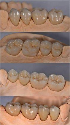 Dental-Spa By K & F. Agenda tu cita hoy - Another! Dental Life, Dental Art, Dental Teeth, Dental Photos, Dental Images, Dental Photography, Dental Aesthetics, Dental Anatomy, Best Dental Implants