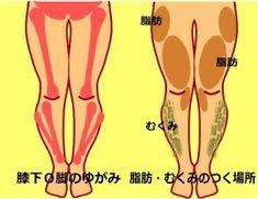 膝下О脚のひとの声 膝下O脚、腓骨の出っ張り、XO脚の原因、矯正方法、やってはいけない失敗例、ストレッチ方法に…