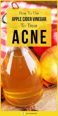 Yes, it is apple cider vinegar! With its varied benefits, ACV is the one miracle cure for a number of health issues. And it can heal acne too! Wondering how to use apple cider vinegar for acne treatment? Read this post to get all the answers! Homemade Acne Treatment, Best Acne Treatment, Overnight Acne Treatment, Cystic Acne Treatment, Acne Treatments, Scar Treatment, Natural Acne Remedies, Home Remedies For Acne, Apple Cider