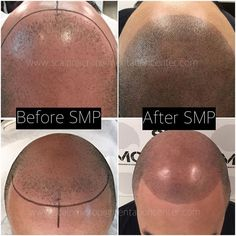 Visit the Best Scalp Micropigmentation training Clinic in Toronto, Ontario, Canada. We specialize in SMP, SMP Hair Density and SMP Scar Camouflage.