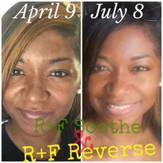 """""""I've put these products to the Test and I LOVE the results and you will too!!! If you've been waiting and watching the time is now!!! Don't wait any longer for the Beautiful skin you so desperately desire! My problems were sensitivity (to everything!) {Soothe to the Rescue to calm sensitive skin} and uneven skin tone {Reverse is just what the Doctor ordered} ...what are your skin concerns?"""" ~ Candice"""