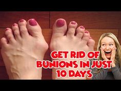 Bunion Removal - Home Remedies For Bunions Treatment - YouTube