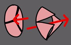 Aortic Stenosis Valve