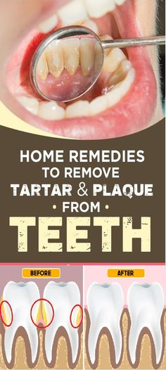 15 Amazing Home Remedies To Remove Tartar And Plaque From Teeth - Health Portal 24 - zahnpasta Teeth Health, Oral Health, Health Care, Health Tips, Causes Of Mouth Ulcers, What Causes Tooth Decay, How To Prevent Cavities, Receding Gums, Best Oral