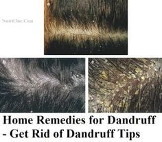 Home Remedies for Dandruff - Get Rid of Dandruff Tips | Nutriclue
