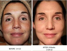 R+F REVERSE for sun damage, dark spots, lightening and brightening skin!  www.cambriabostrom.myrandf.com