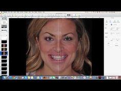 Digital Smile Design - Christian Coachman & Livio Yoshinaga - PART 2/4 - YouTube