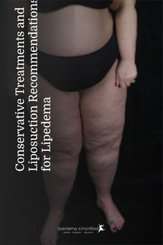 Dr. Emily Iker, after developing lymphedema due to cancer treatment herself, started a practice in Santa Monica California to treat patients with lymphatic and fat disorders.In this excerpt, she talks about the conservative treatments she recommends for lipedema and when liposuction surgery may be indicated. Santa Monica California, Liposuction, Cancer Treatment, Disorders, Surgery, Fat, Life