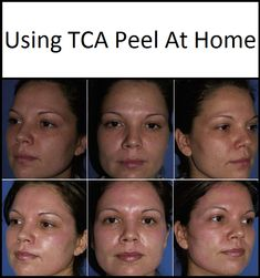 """Trichloroacetic peel or TCA peel is a very effective chemical peel. It is used exfoliate and renew the skin on a superficial to deep level. TCA is commonly applied to the face, neck, décolleté, hands and legs. In addition, TCA is also an excellent """"spot t Cream For Dry Skin, Skin Cream, Tca Peel, Skin Peeling On Face, Age Spots On Face, Warts On Face, Skin Tightening Cream, Exfoliate Face, Chemical Peel"""