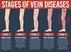 What are Varicose Veins?Varicose veins are expanded, twisted, veins that are near the surface of the skin. Veins disagree from arteries in 2 primary ways that. The muscular layer of veins is smaller than arteries. As a result, veins don't contract as Varicose Vein Remedy, Varicose Veins Treatment, Varicose Veins Causes, Creme Anti Rides, Creme Anti Age, Arthritis, Ayurveda, Vascular Ultrasound, Self Treatment