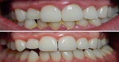 Zo kun je op een natuurlijke wijze je tandplak of tandsteen zelf verwijderen! - Gezonde ideetjes