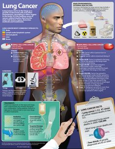 Lung Cancer Has Many Causes