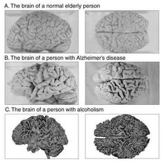 Pictures of brains of normal person compared with those with Alzheimer's disease and with alcoholism