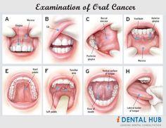 Examination of Oral Cancer