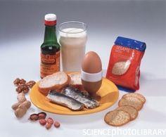 Voedselallergieën blijken in meerdere opzichten voor problemen te zorgen.