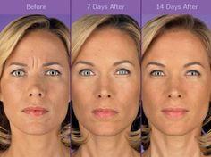 Botox Injections | Skin Care | Anti Aging | Eugene Oregon