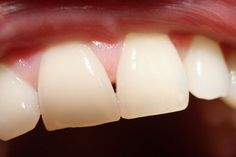 Take a Bite out of Human Teeth and Evolution Best Whitening Toothpaste, Whitening Kit, Human Teeth, Teeth Bleaching, Best Oral, White Teeth, Best Sites, Orthodontics, Health