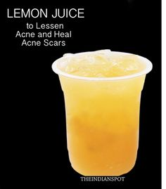 Lemon juice for Acne and Heal Acne Scars