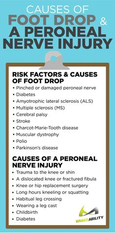 Foot drop causes include problems that are neurological, anatomical and muscular in nature, with the Ankle Strengthening Exercises, Foot Exercises, Nerve Damage In Leg, Nerve Pain, Nervous System Anatomy, Plantar Fasciitis Remedies, Hip Problems, Health Problems, Medical Massage