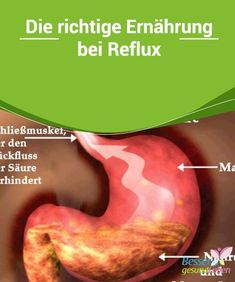 Reflux Ernährung