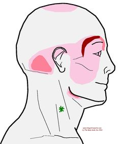 Here's another headache example. Remember, trigger points restrict stretch, restrict contraction and create a referral (usually pain). Headache around my brow. Here's another headache that comes fr...